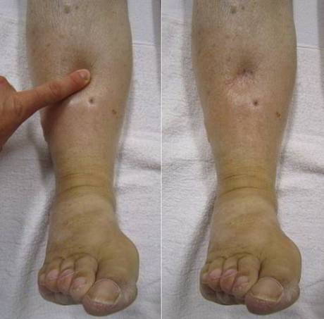 Blog Andika Priyandana - preeklampsia - kaki membengkak berisi cairan 2 - sumber womennow.in