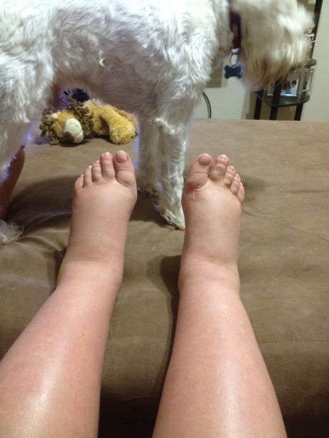 Blog Andika Priyandana - preeklampsia - kaki membengkak berisi cairan - sumber photobucketcom